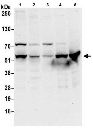 Western blot - Anti-UGDH antibody (ab226172)