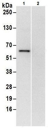 Immunoprecipitation - Anti-ZPR9 antibody (ab226174)