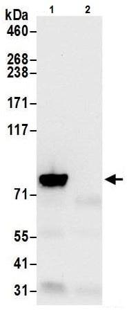 Immunoprecipitation - Anti-VPS35 antibody - C-terminal (ab226180)