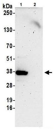 Immunoprecipitation - Anti-ZNF346 antibody - C-terminal (ab226182)
