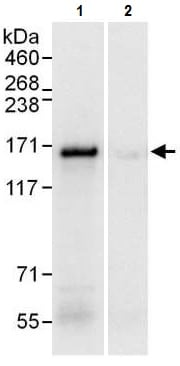 Immunoprecipitation - Anti-Desmoglein 2/DSG2 antibody (ab226184)