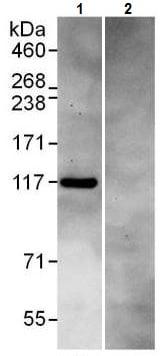 Immunoprecipitation - Anti-DIS3 antibody (ab226186)