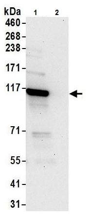 Immunoprecipitation - Anti-ADAR1 antibody (ab226188)