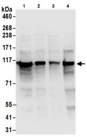 Western blot - Anti-ADAR1 antibody (ab226188)