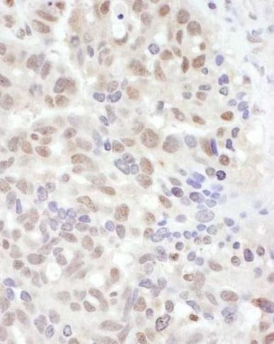Immunohistochemistry (Formalin/PFA-fixed paraffin-embedded sections) - Anti-ADAR1 antibody (ab226188)