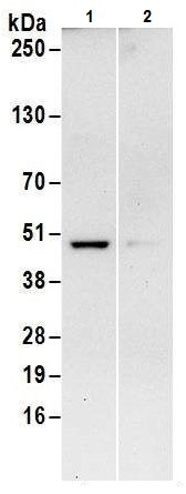 Immunoprecipitation - Anti-IDH1 antibody - N-terminal (ab226190)