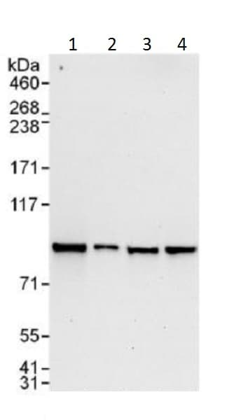 Western blot - Anti-STAT5b antibody (ab226193)