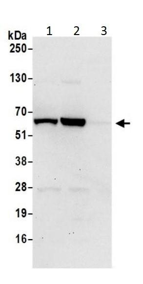 Western blot - Anti-CBS antibody (ab226194)