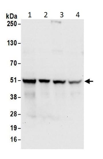 Western blot - Anti-SSB antibody (ab226196)