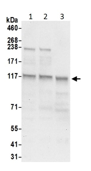 Western blot - Anti-HIP1R antibody (ab226197)