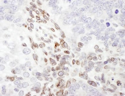 Immunohistochemistry (Formalin/PFA-fixed paraffin-embedded sections) - Anti-Lamin A antibody (ab226198)