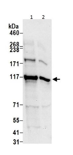 Western blot - Anti-ATP citrate lyase antibody - C-terminal (ab226200)