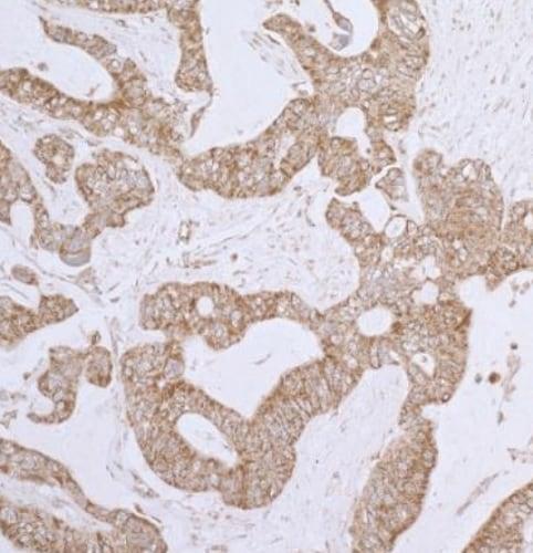 Immunohistochemistry (Formalin/PFA-fixed paraffin-embedded sections) - Anti-Lipoamide Dehydrogenase antibody - C-terminal (ab226202)
