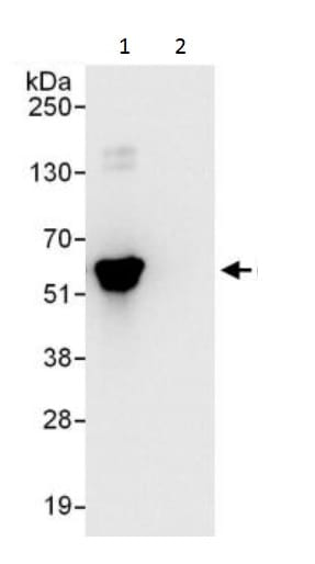 Immunoprecipitation - Anti-AMF antibody (ab226203)