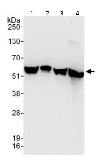 Western blot - Anti-AMF antibody (ab226203)