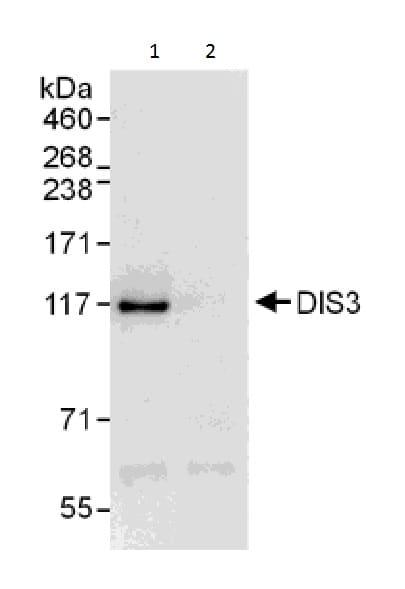 Immunoprecipitation - Anti-DIS3 antibody - C-terminal (ab226204)
