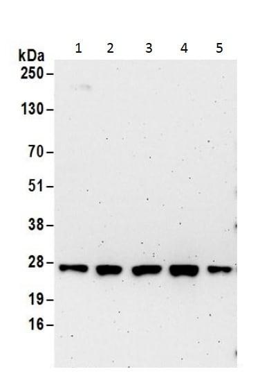 Western blot - Anti-Ran antibody - C-terminal (ab226205)