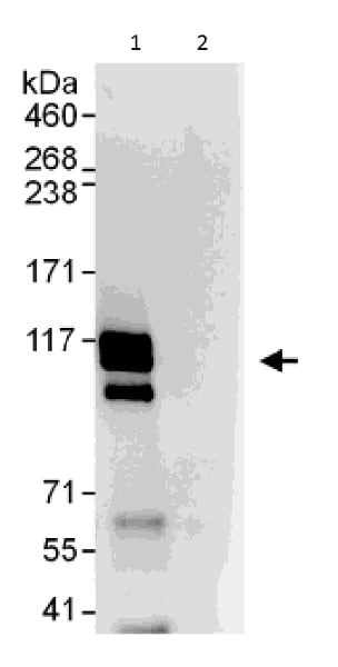 Immunoprecipitation - Anti-SKI antibody - C-terminal (ab226208)