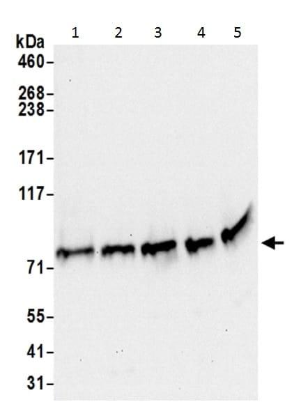 Western blot - Anti-GARS antibody - C-terminal (ab226209)