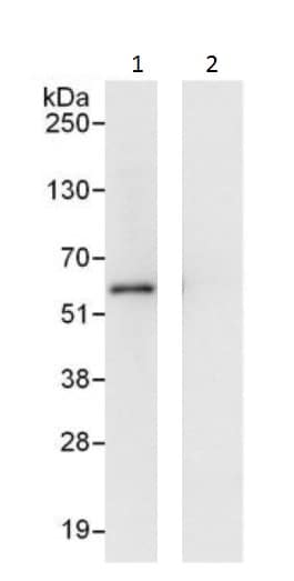 Immunoprecipitation - Anti-AMF antibody - N-terminal (ab226212)