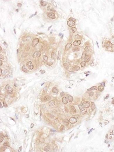 Immunohistochemistry (Formalin/PFA-fixed paraffin-embedded sections) - Anti-WWOX antibody (ab226221)