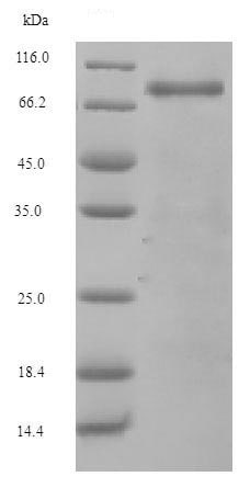 SDS-PAGE - Recombinant Mouse Complement factor B protein (His tag) (ab226229)