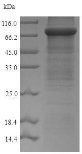 SDS-PAGE - Recombinant Mouse ACSS2 protein (His tag) (ab226234)