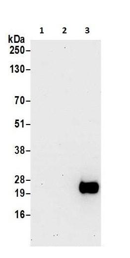 Western blot - Anti-CD3D antibody (ab226246)