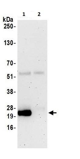 Immunoprecipitation - Anti-CD3D antibody (ab226246)