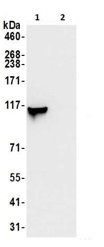 Immunoprecipitation - Anti-MVP antibody (ab226248)