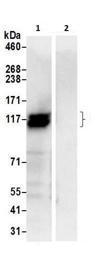 Immunoprecipitation - Anti-Calpastatin antibody (ab226249)