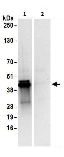 Immunoprecipitation - Anti-UCH37 antibody (ab226250)