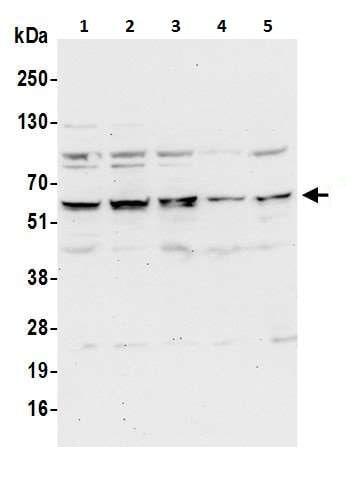 Western blot - Anti-DUS2L antibody - C-terminal (ab226252)
