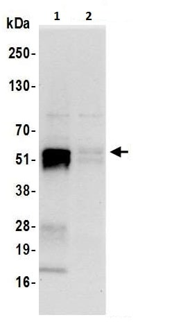 Immunoprecipitation - Anti-DUS2L antibody - C-terminal (ab226252)