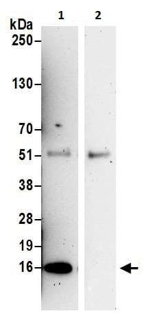 Immunoprecipitation - Anti-KIAA0101 antibody (ab226255)