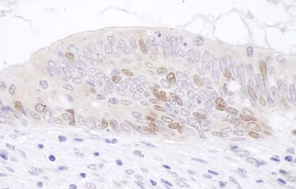 Immunohistochemistry (Formalin/PFA-fixed paraffin-embedded sections) - Anti-KIAA0101 antibody (ab226255)