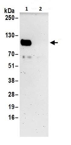 Immunoprecipitation - Anti-CD276 antibody (ab226256)