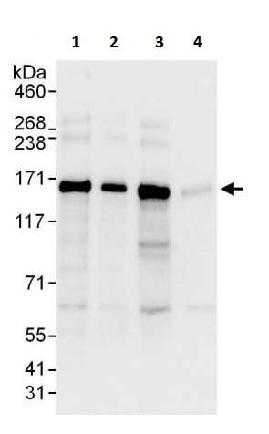 Western blot - Anti-Desmoglein 2/DSG2 antibody - C-terminal (ab226258)