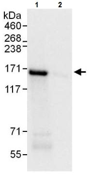 Immunoprecipitation - Anti-Desmoglein 2/DSG2 antibody - C-terminal (ab226258)