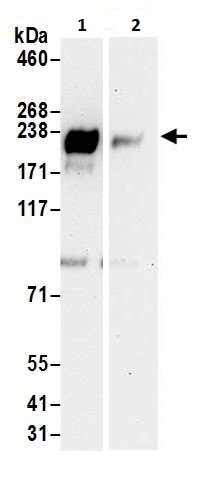 Immunoprecipitation - Anti-ErbB 3 antibody (ab226260)