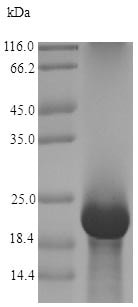 SDS-PAGE - Recombinant Antifungal protein (His tag) (ab226283)