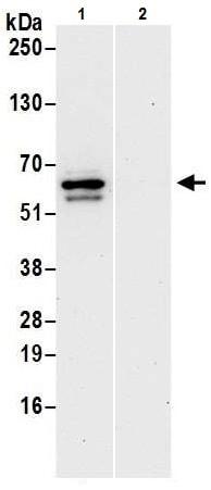Immunoprecipitation - Anti-RIP3 antibody (ab226297)