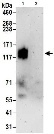 Immunoprecipitation - Anti-Nicastrin antibody - C-terminal (ab226299)