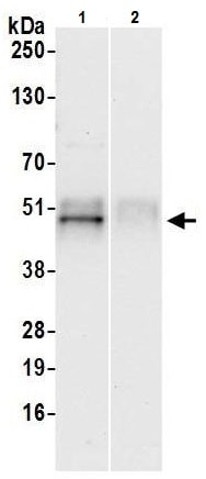 Immunoprecipitation - Anti-TCPTP antibody - N-terminal (ab226301)