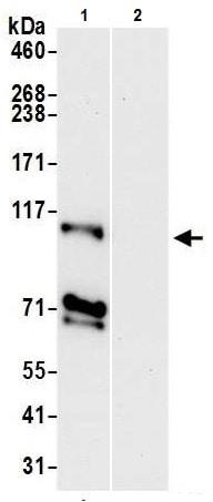 Immunoprecipitation - Anti-NCKAP1 antibody - N-terminal (ab226302)