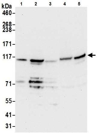 Western blot - Anti-NCKAP1 antibody - N-terminal (ab226302)