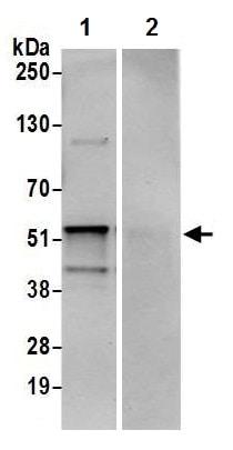 Immunoprecipitation - Anti-TADA3L antibody (ab226305)