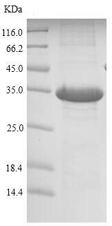 SDS-PAGE - Recombinant Mouse REG1 protein (His tag) (ab226312)