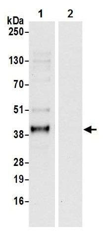Immunoprecipitation - Anti-EMAP II/AIMP1 antibody - N-terminal (ab226337)