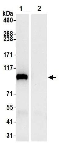 Immunoprecipitation - Anti-MTHFD1 antibody (ab226341)